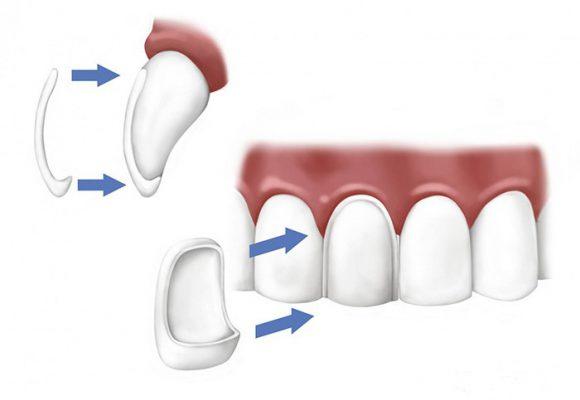 Sfaccettature dentali